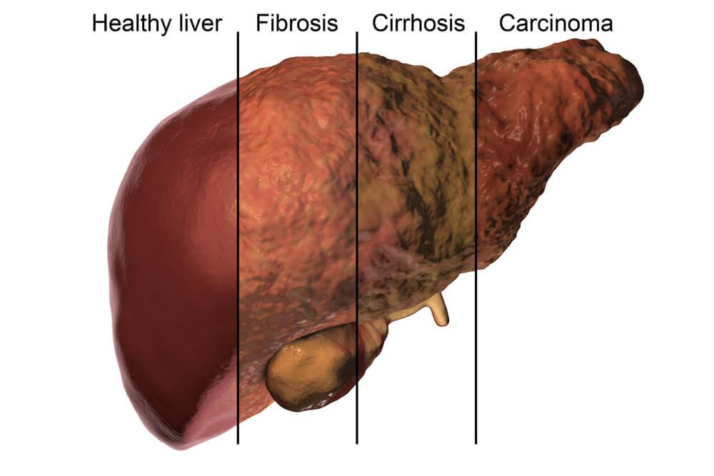 Diferentes estadíos de la salud hepática. Importancia del metabolismo hepático.