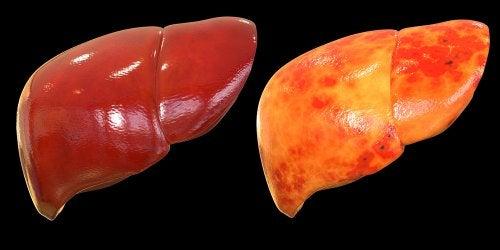 ¿Qué es el hígado graso?  ¿Cómo se trata?