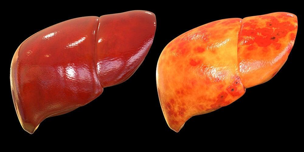 enfermedades asociadas a la obesidad: hígado graso