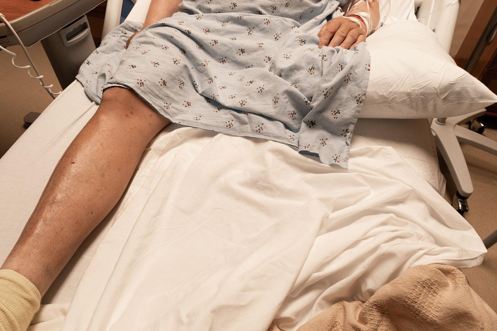 Hombre con una pierna amputada en una camilla.