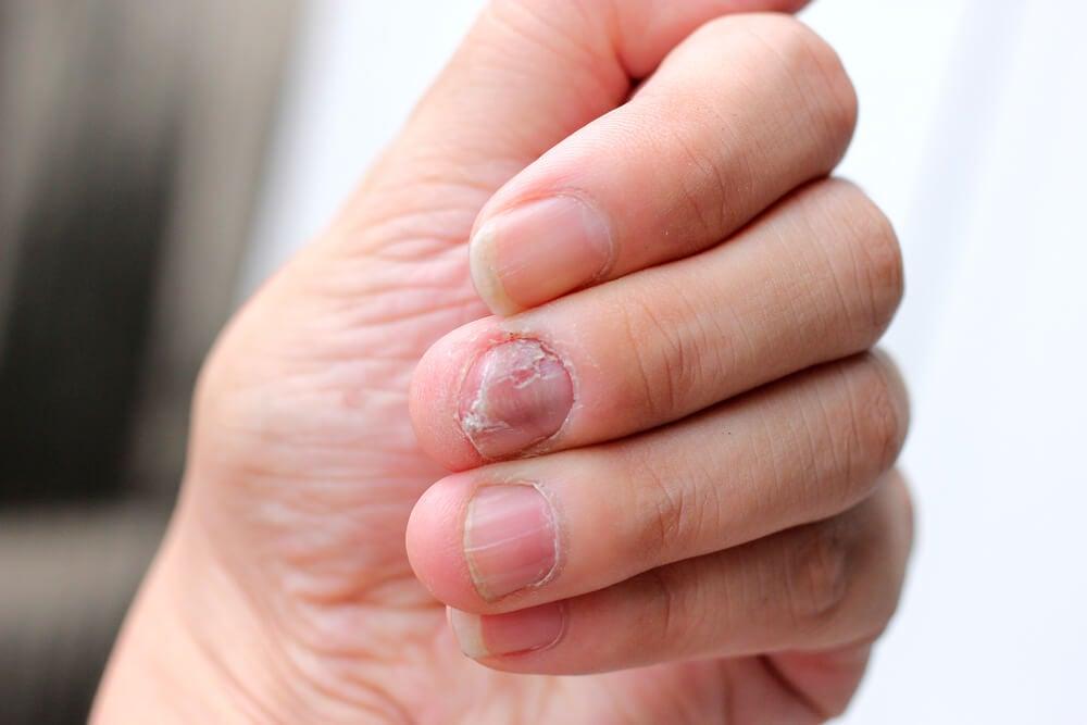 Tener hongos en las uñas: todo lo que debes saber