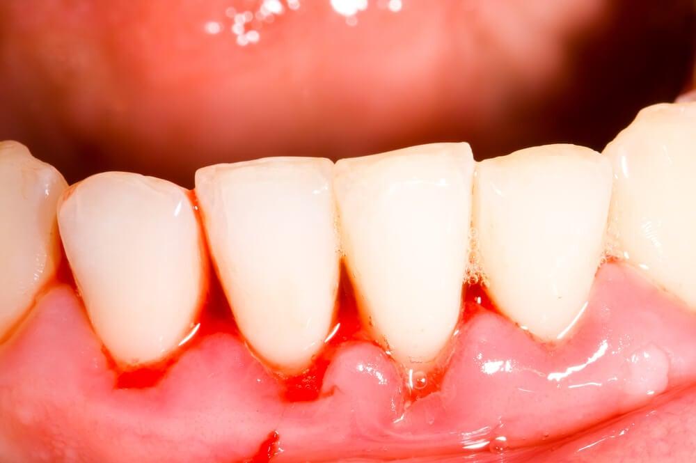 "Gingivitis severa llamada ""boca de trinchera""."