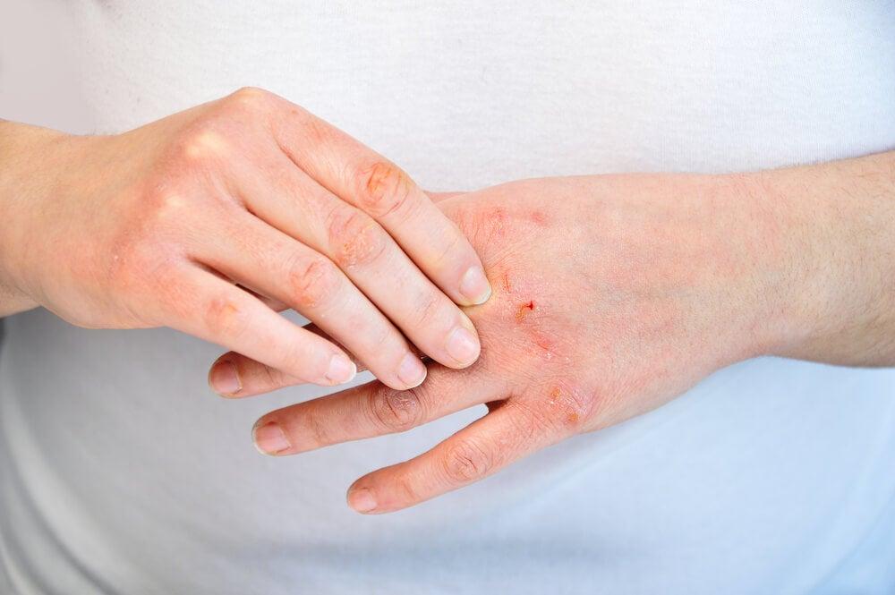 Cómo cuidar las manos agrietadas: 10 recomendaciones