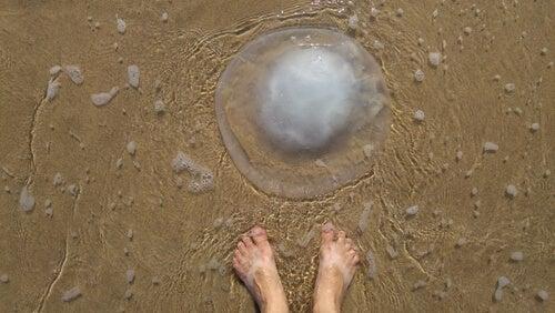 ¿Cómo prevenir y tratar las picaduras de medusa?