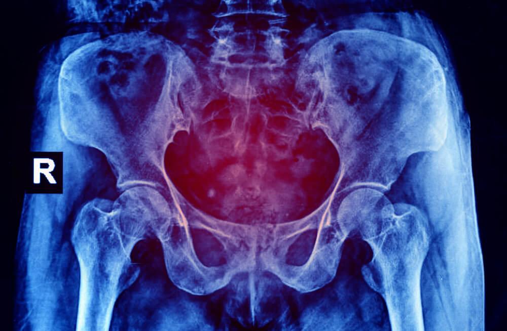 Síntomas del atrapamiento del nervio pudendo