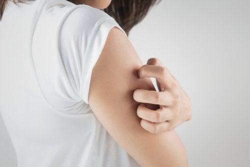 Trastorno por excoriación: todo lo que debes saber