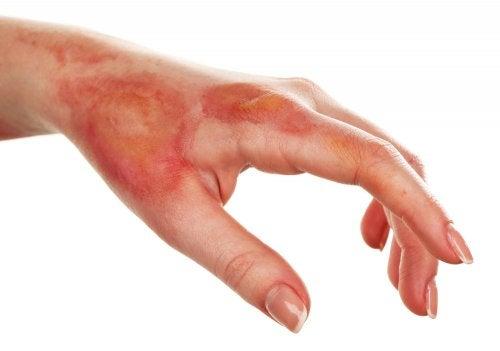 Diagnóstico de la necrosis cutánea