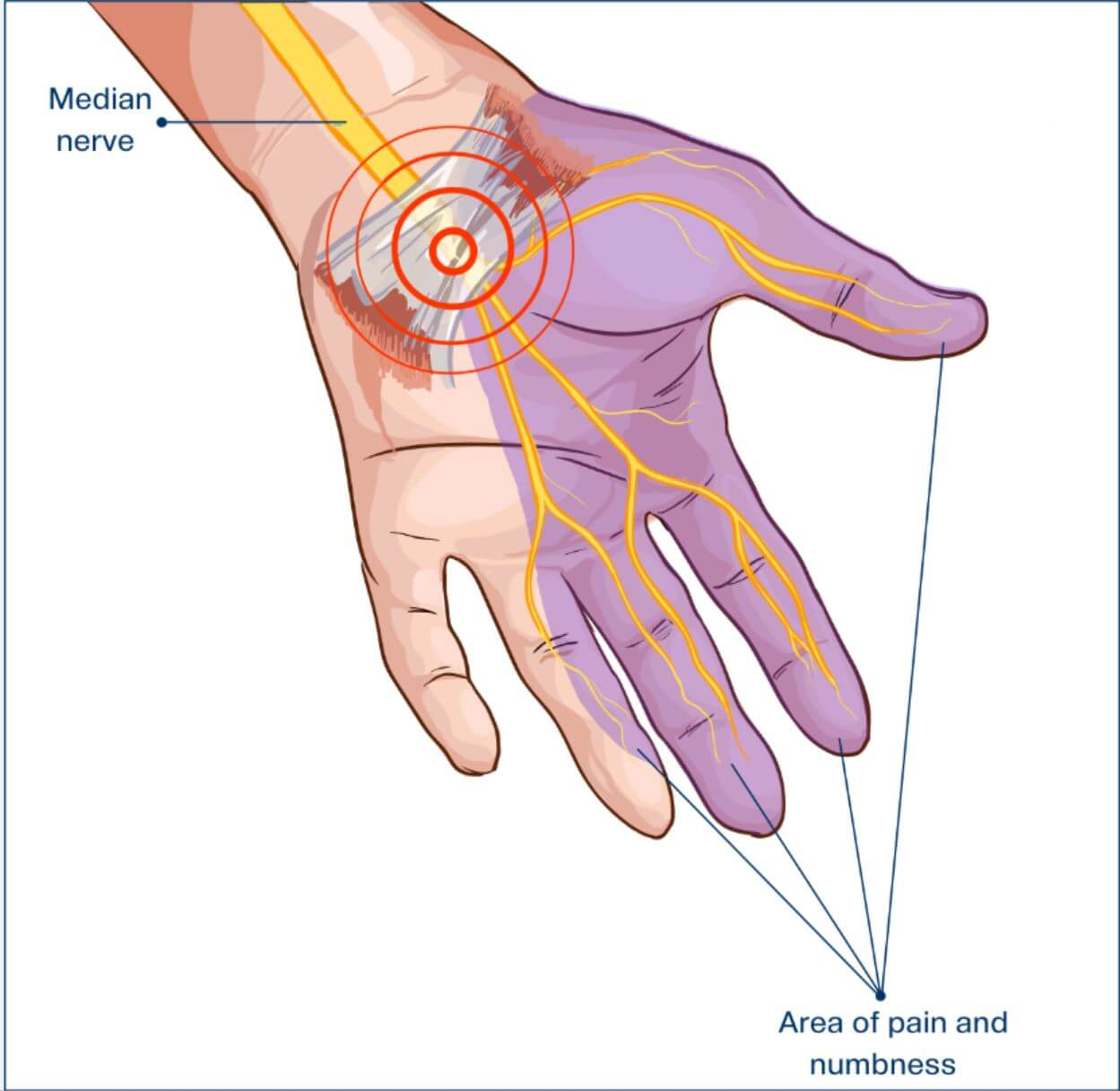 Los síntomas del síndrome del túnel carpiano se localizan en la parte baja del brazo principalmente.