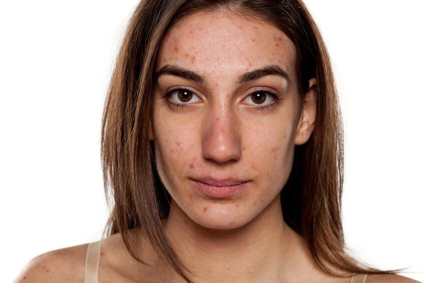 Rostro de mujer con acné.