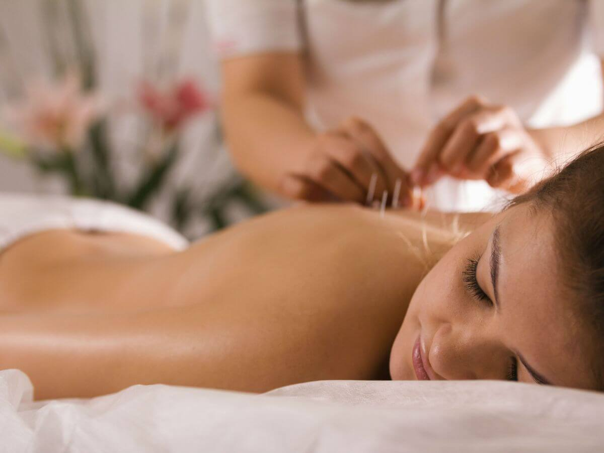 Mujer en una sesión de acupuntura