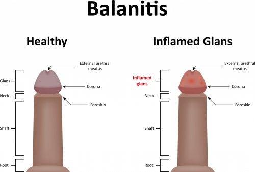 candida en el glande tratamiento