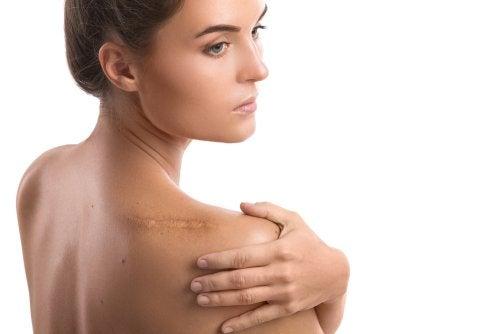 Disminuye el dolor de hombro con estos remedios caseros