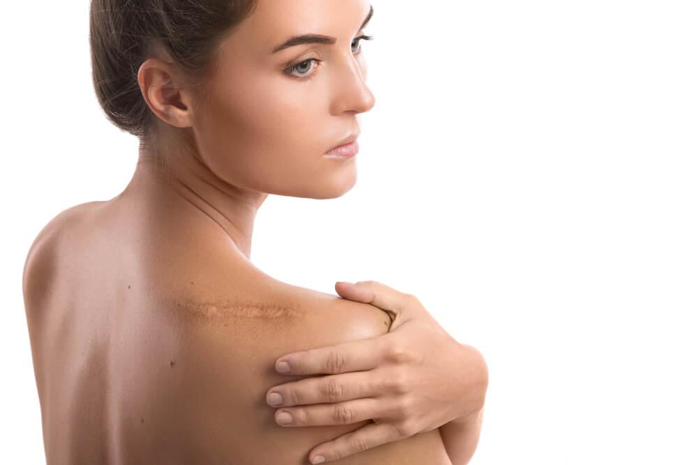 Cómo disimular las cicatrices: 5 consejos y remedios que te ayudan
