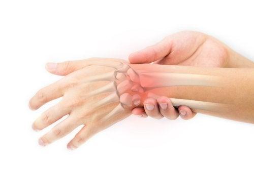 Las fracturas en la mano son de las más comunes.