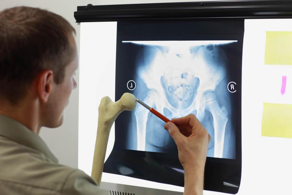 Necrosis avascular de la cadera