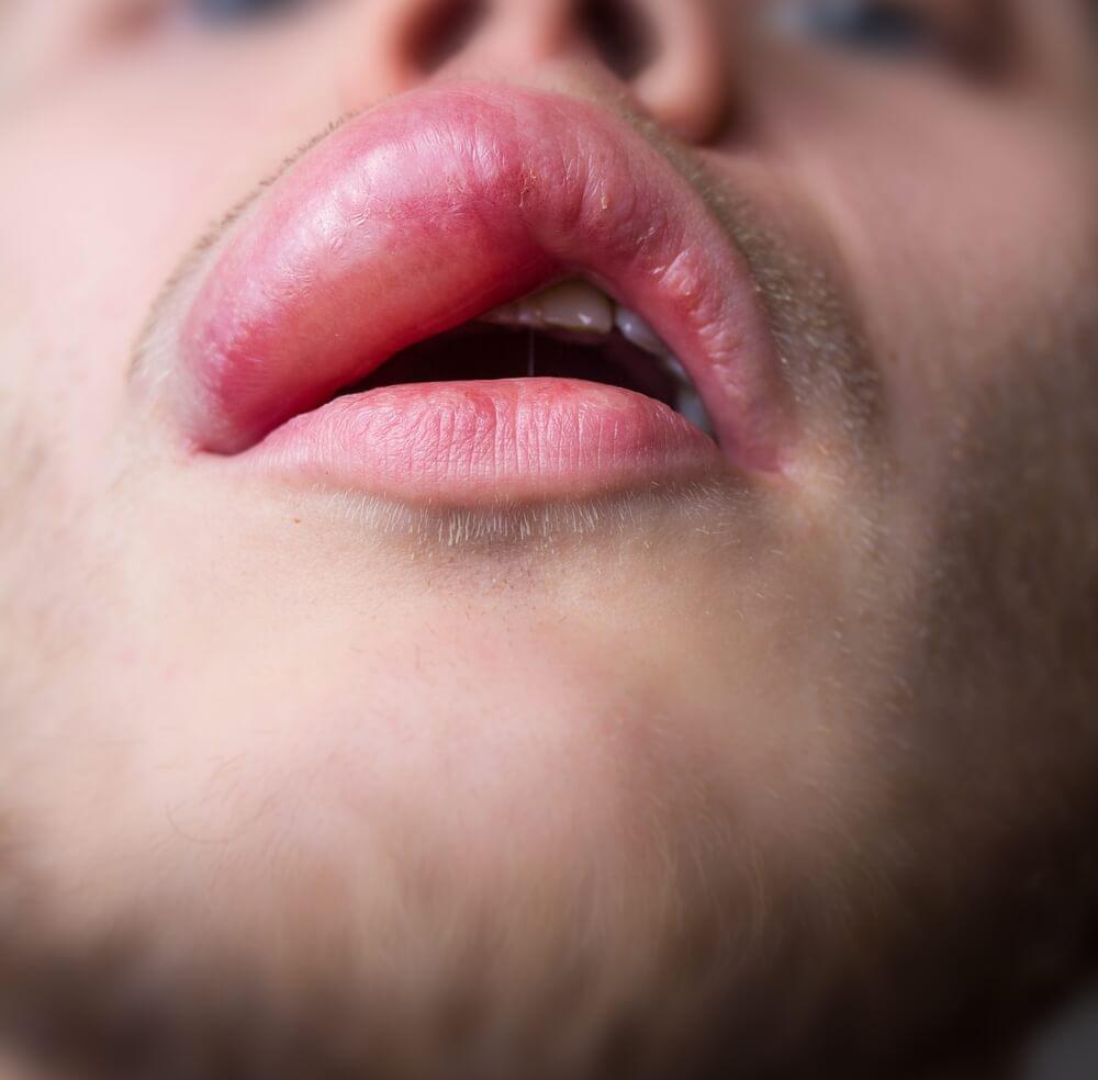 6 remedios caseros para curar los labios hinchados