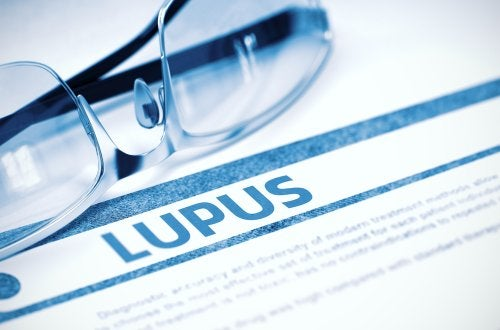 Medicamentos que causan lupus eritematoso