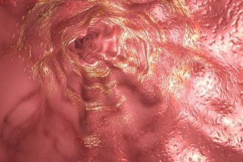Síndrome de Boerhaave o perforación del esófago