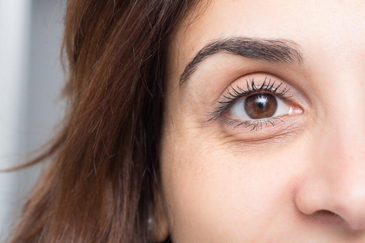 alteración de la piel debajo delos ojos