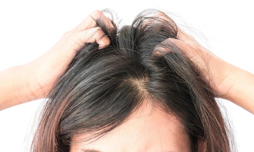 ¿Te pica el cuero cabelludo? 5 remedios naturales para calmarlo