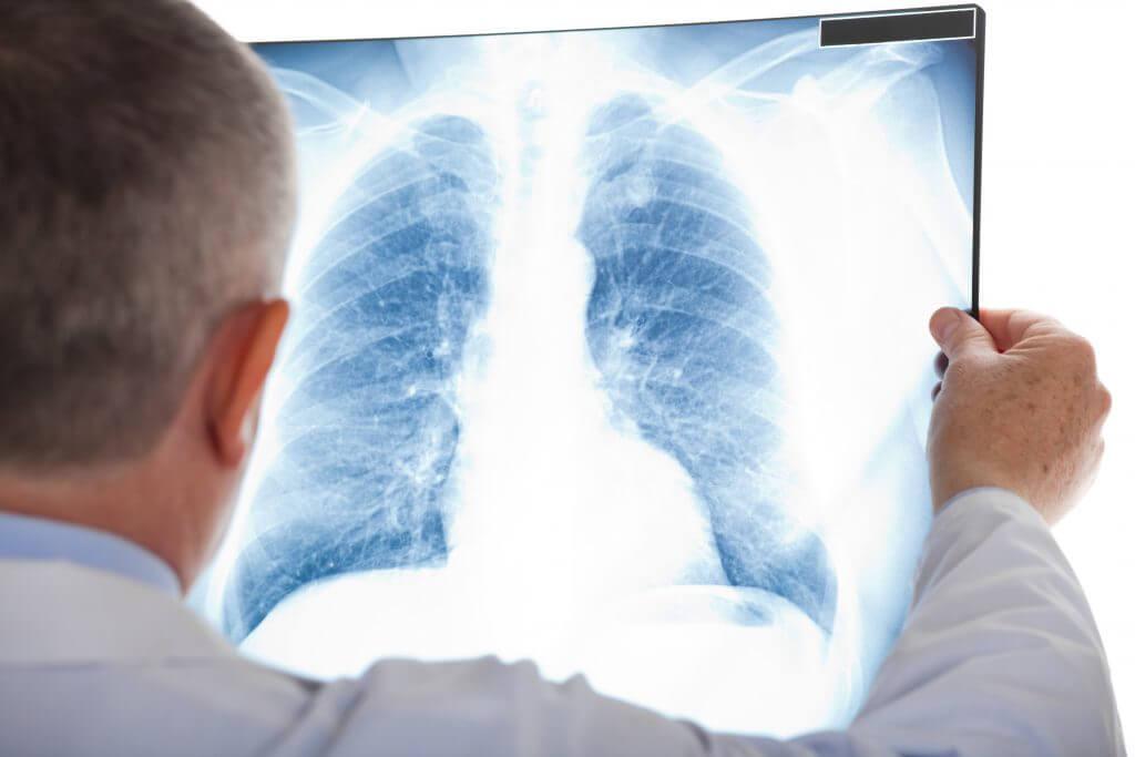 Pulmones para un trasplante