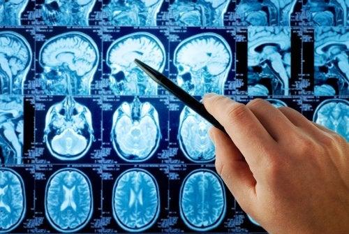 ¿Cuáles son los primeros síntomas del cáncer de cerebro?