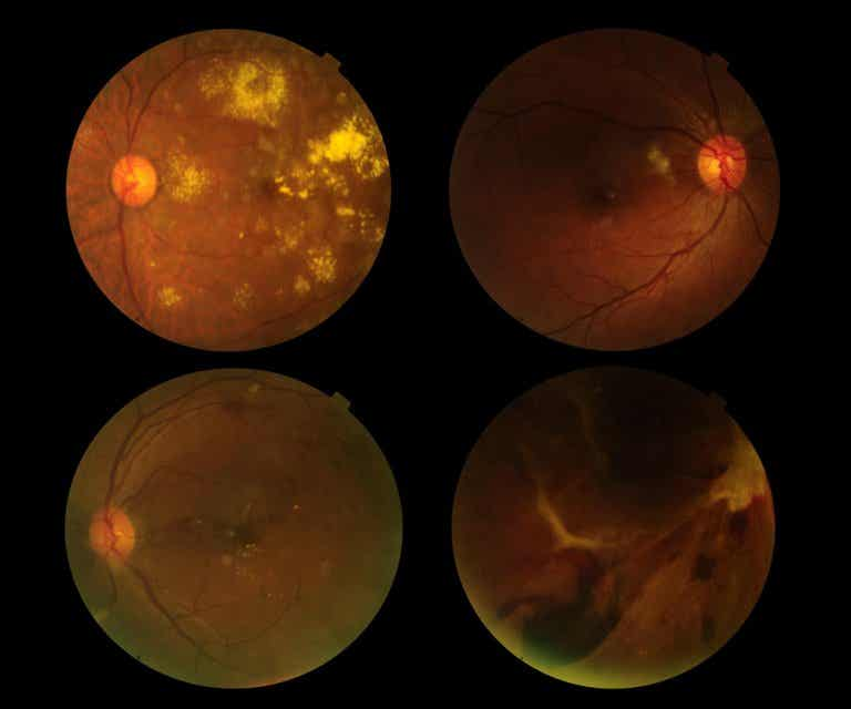 Prevención de la degeneración macular