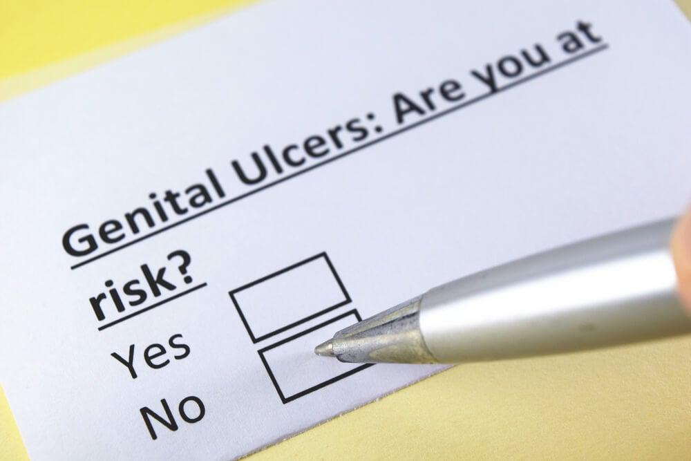 ¿Qué produce las úlceras genitales? ¿Cuál es su tratamiento?