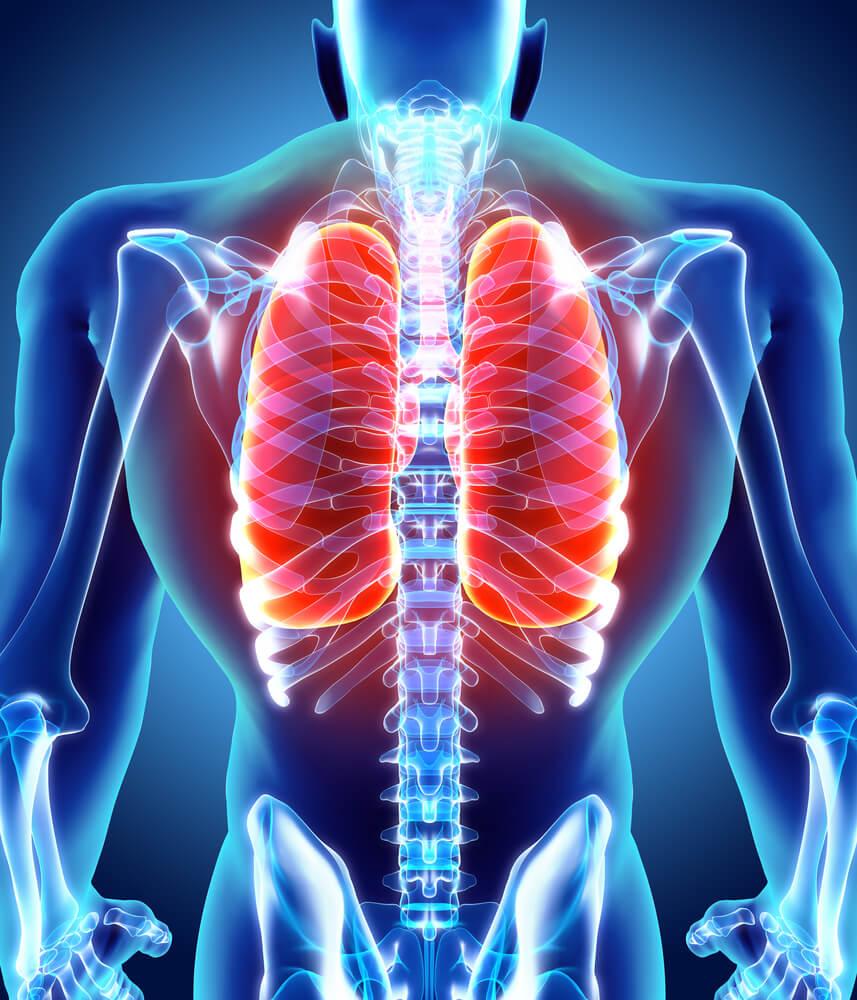 atelectasia vías aéreas pulmones