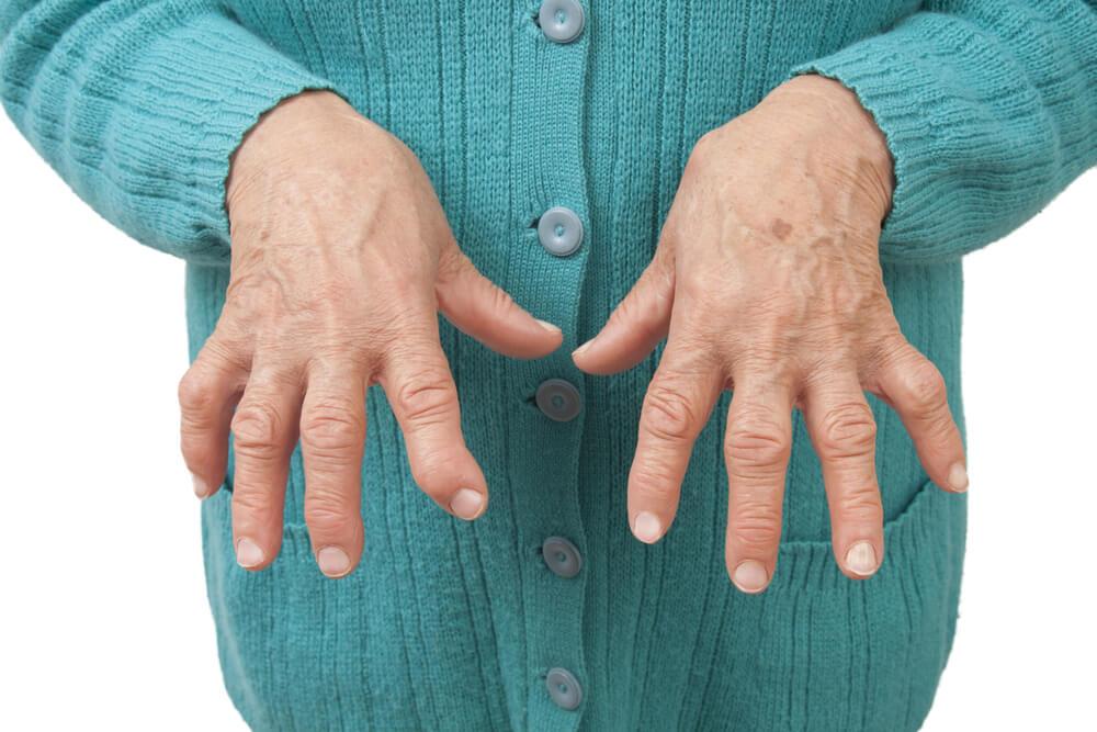 Preparaciones medicinales para calmar la artritis reumatoide