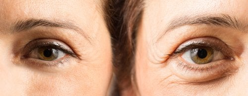 Blefaroplastia: la cirugía para quitar las bolsas en los ojos