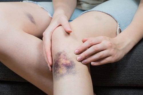 5 soluciones naturales para atenuar los hematomas