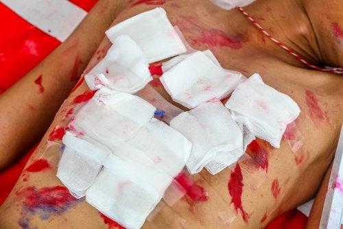 Tratamientos de las heridas torácicas abiertas