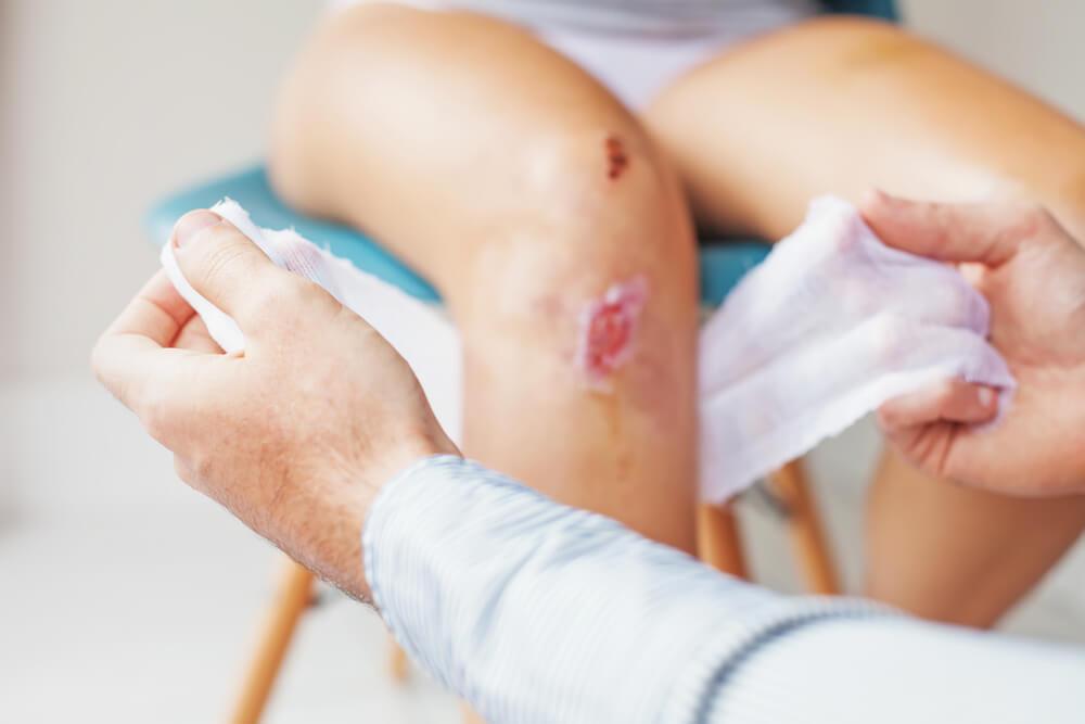 Cómo se clasifican las heridas