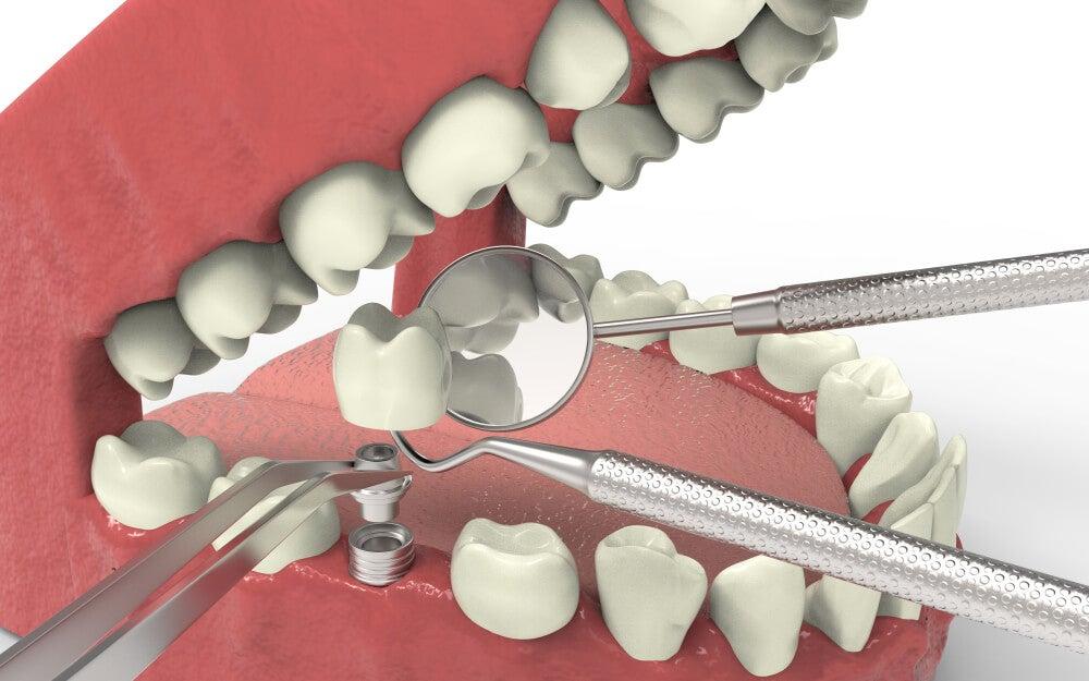 Recreación digital de un implante dental. Tratamiento para agenesia dental.