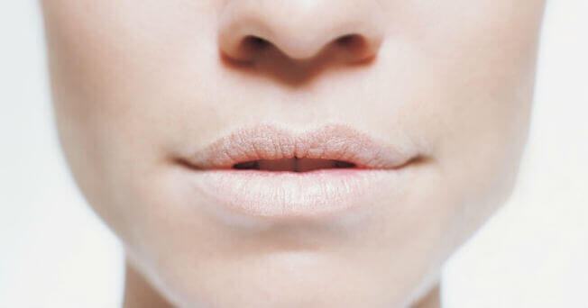 Mujer con boca seca y labios pálidos