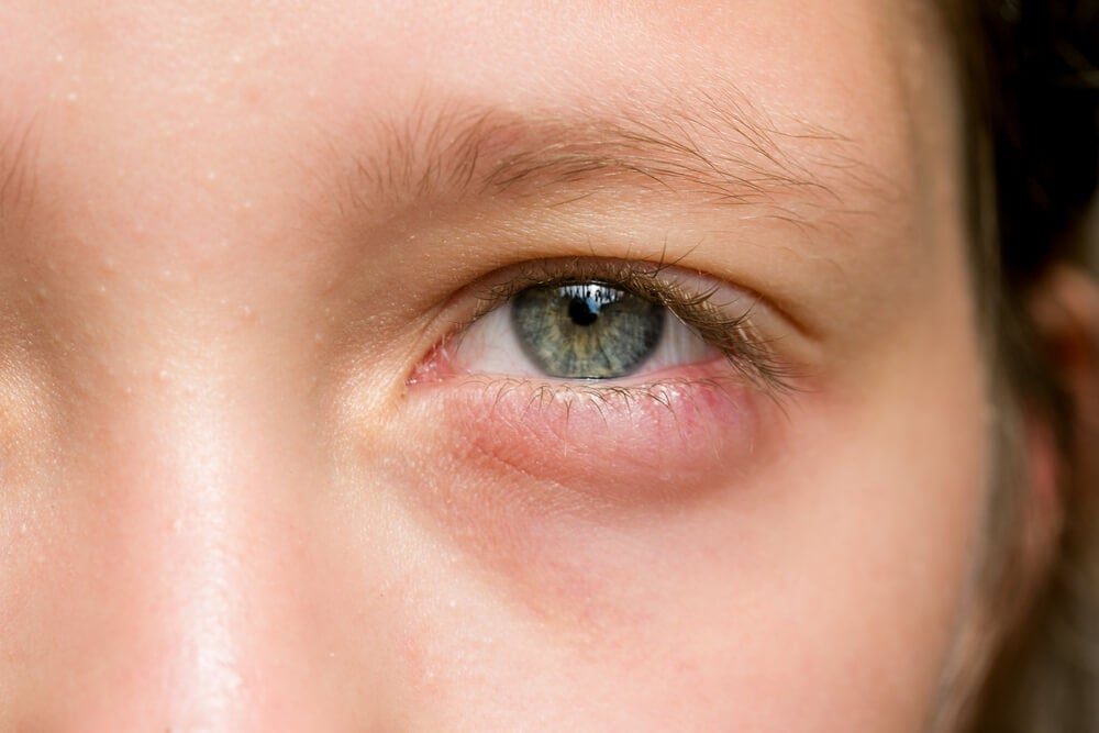 Tus Ojos Amanecieron Hinchados 5 Remedios Rápidos Para Aliviarlos Mejor Con Salud