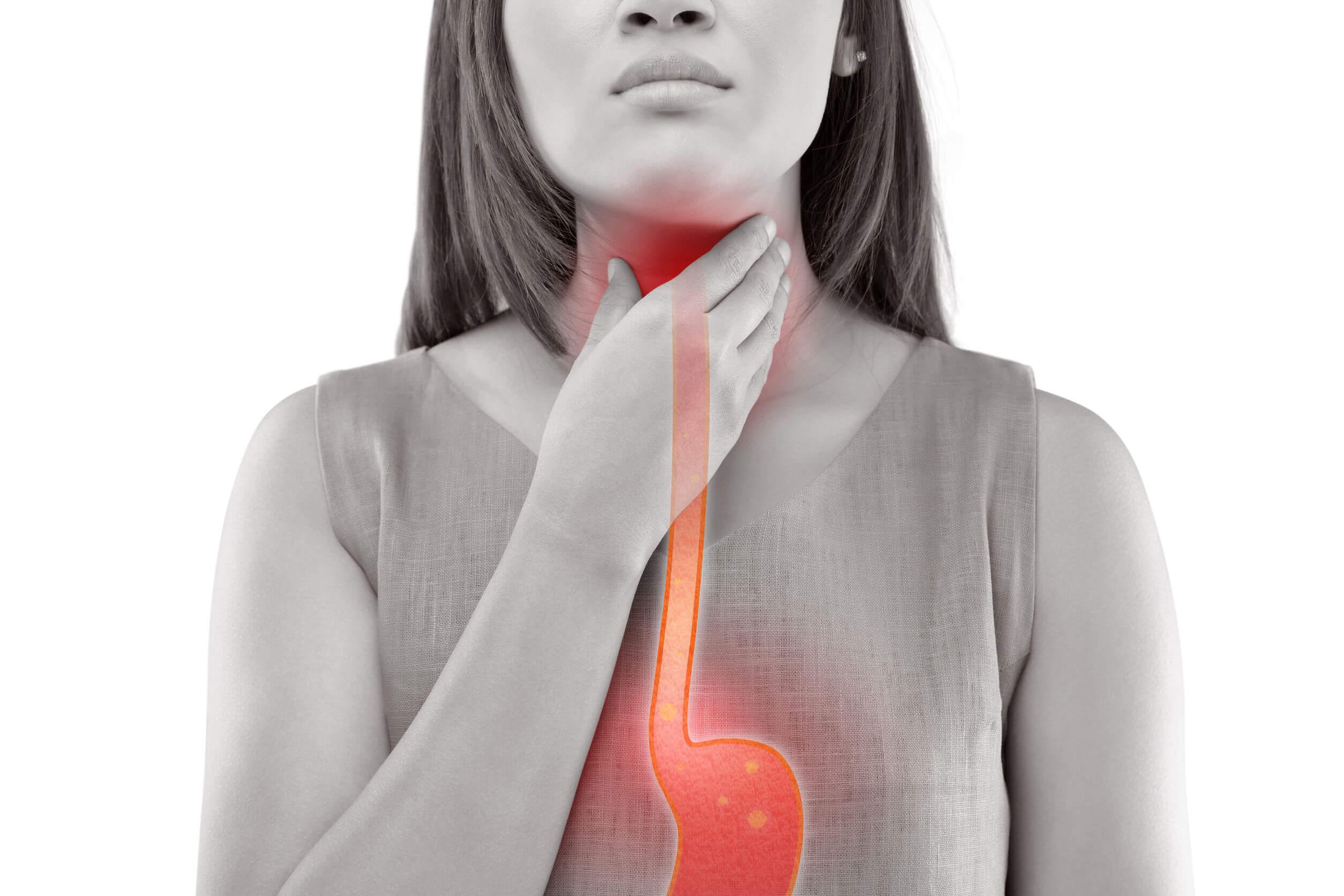 7 consejos de alimentación para tratar el reflujo gastroesofágico