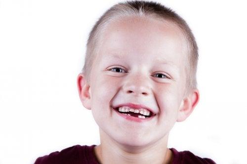 Cómo cuidar los dientes de leche de los niños