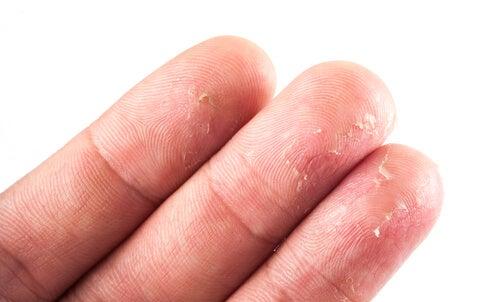 Tres dedos de una mano con eczema.
