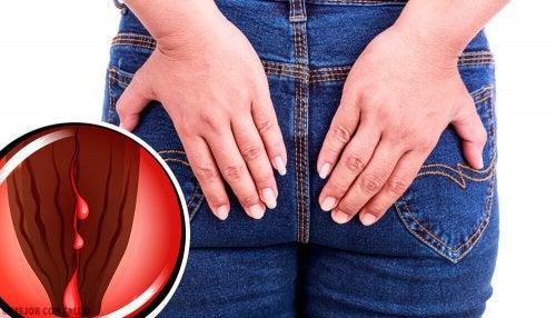 Las fisuras anales son desgarramientos de la mucosa de la parte final del intestino.