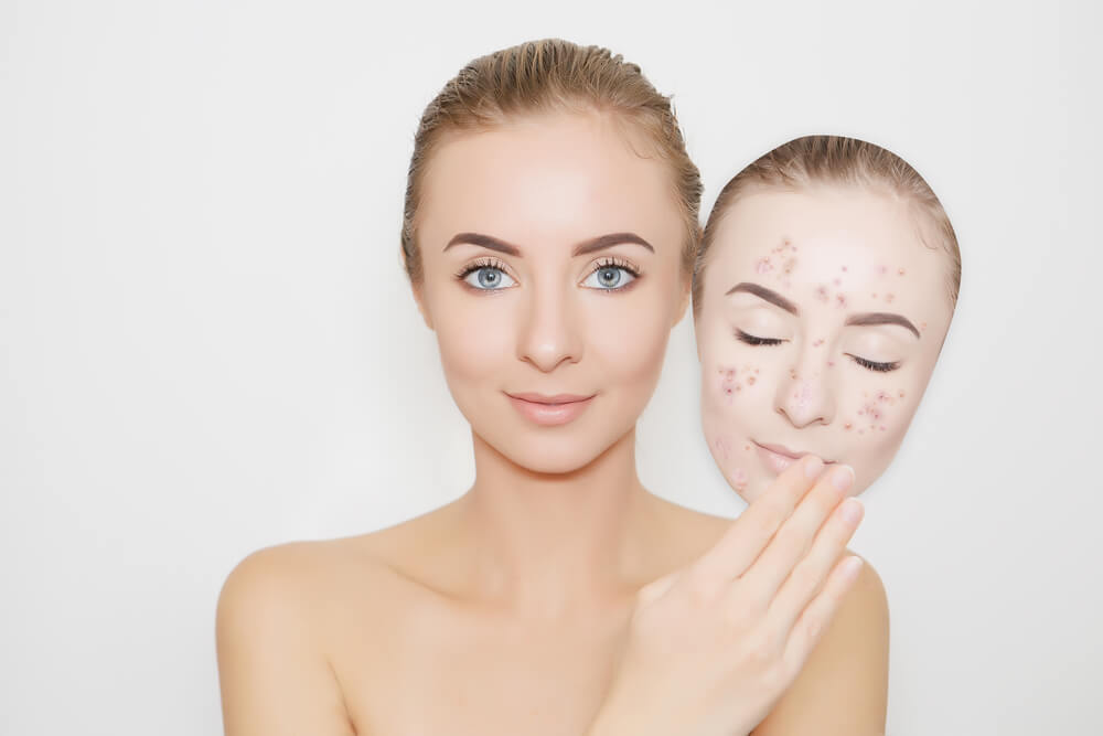 Mujer con acné en el rostro.