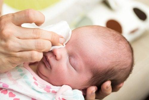 Cómo tratar los ojos llorosos en bebés