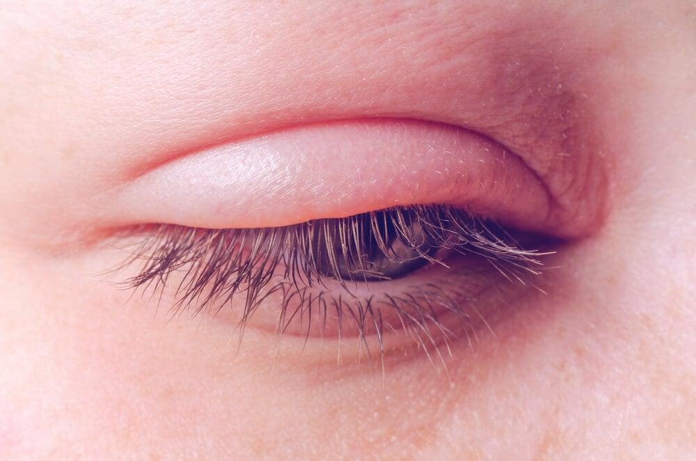 persona con el párpado inflamado, proceso conocido como blefaritis