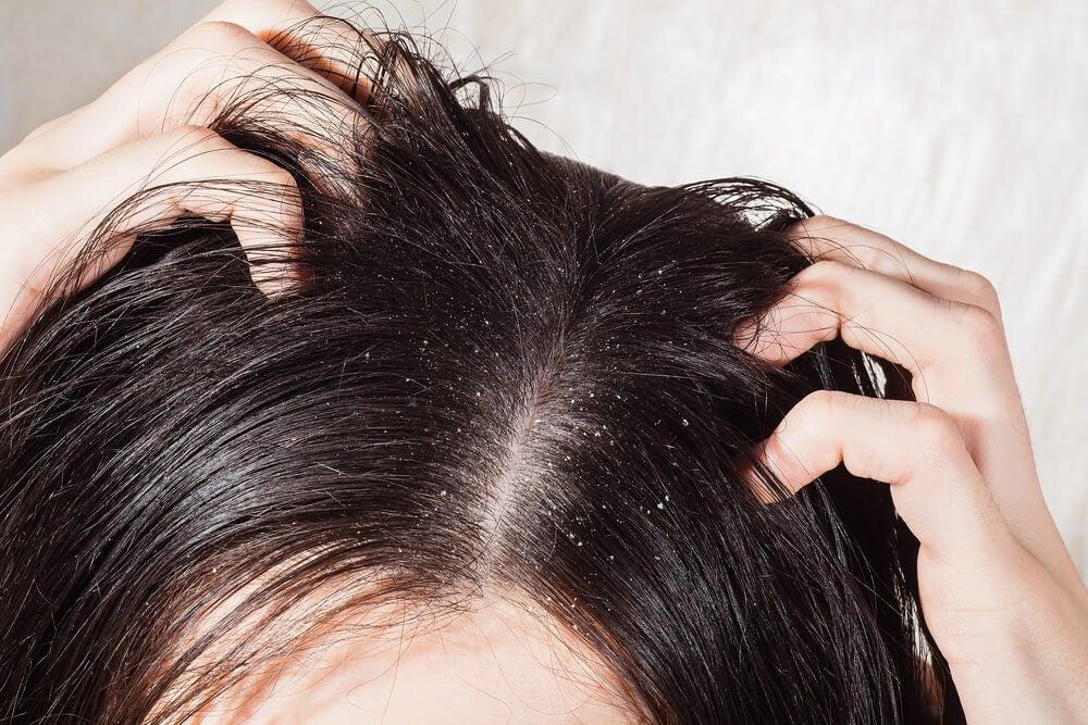Mujer rascándose la cabeza porque tiene caspa.