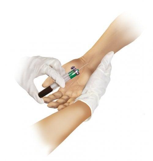 ¿Qué indica una gasometría arterial?