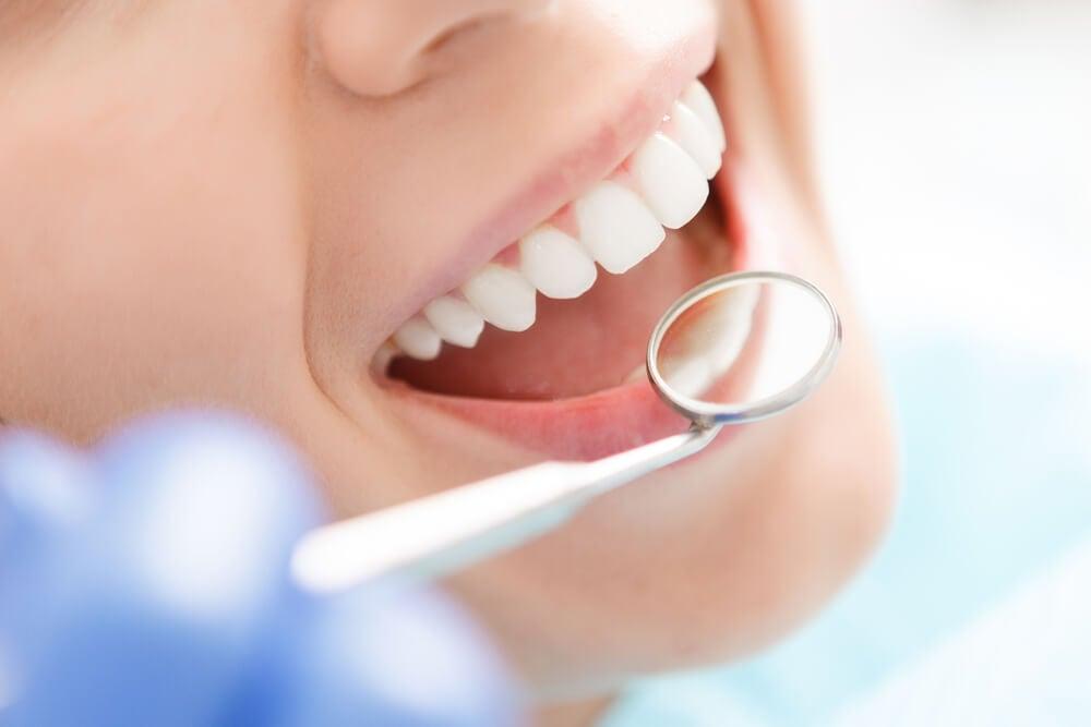 Revisión bucal por parte de un dentista para controlar la gingivitis.