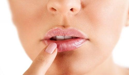 4 remedios naturales que ayudan en el control del herpes labial
