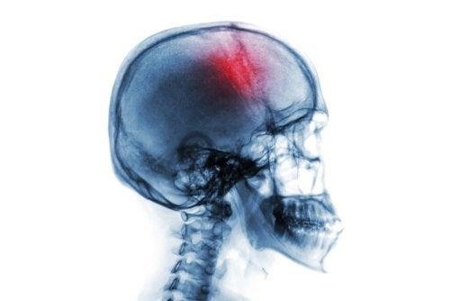 Infarto cerebral: causas y tratamiento
