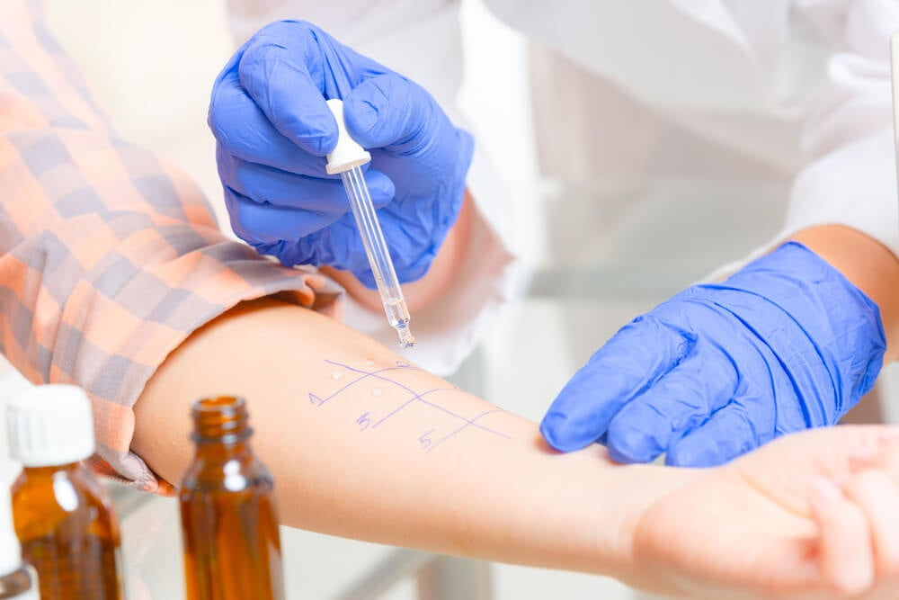 Médico realizando las pruebas de alergia a un paciente.